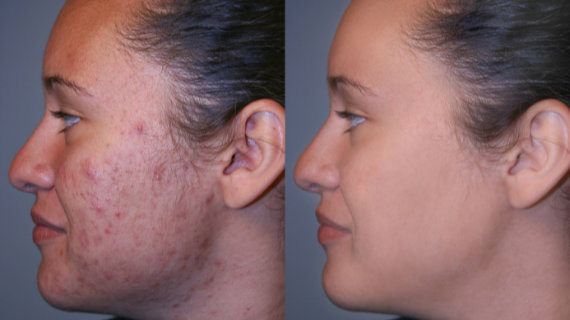 Plasmolifting Skin Treatment - before and after